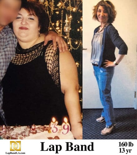 Bariatric surgery Los Angeles before and after photo