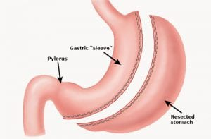 Gastric Sleeve Bariatric Surgery Treatment Options Animation The Weight Loss Surgery Center of Los Angeles