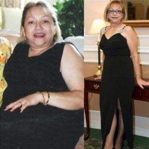 Lap Band Surgery Before And After At The Weight Loss Surgery Center of Los Angeles In Beverly Hills