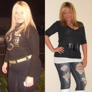 Sucesful Lap Band Surgery Results Before and After Testimonials