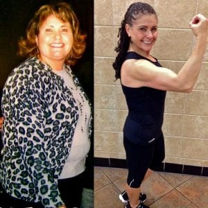 A Happy Lap Band Surgery Before And After Showing Her Weight Loss Results In The City of Los Angeles