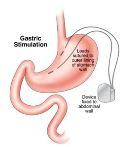 Gastric stimulation Vbloc Surgery Device