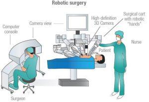 Gastric Sleeve Blog Article Robotic Surgery Illustration