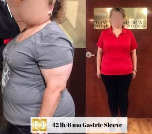 Bariatric Surgery Before And After With Gastric Sleeve Surgery At The Weight Loss Surgery Center Of Los Angeles in Beverly Hills