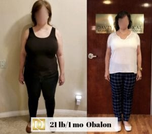 Bariatric Surgery Before and After with Obalon Intragastric Balloon at The Weight Loss Surgery Center of Los Angeles in Beverly Hills.