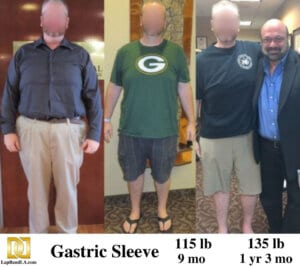 Bariatric surgery center patient in Los Angeles before and after