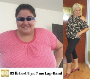 Lap_Band_Before_And_After_with_Amazing Results