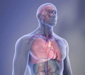Bariatric surgery can reduce obesity and chances of heart disease