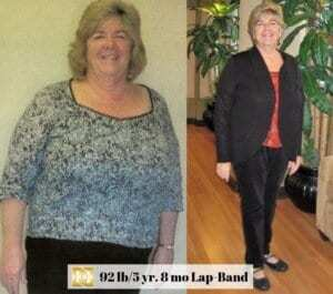 Lap Band Surgery Before and after picture