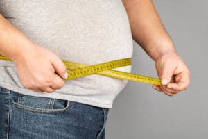 Weight Loss Surgery Los Angeles