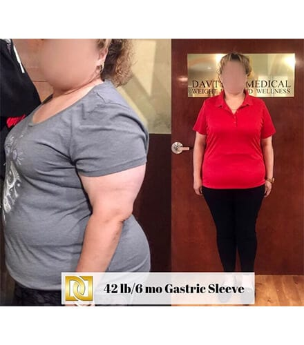 Gastric Sleeve Surgery in Los Angeles Before and After