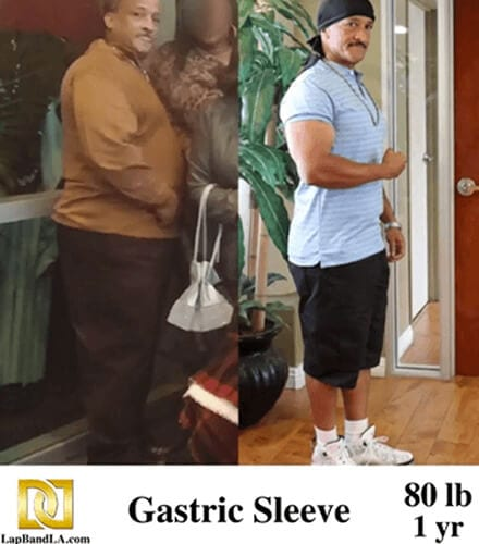 bariatric surgery before and after from Gastric Sleeve Surgery in Los Angeles