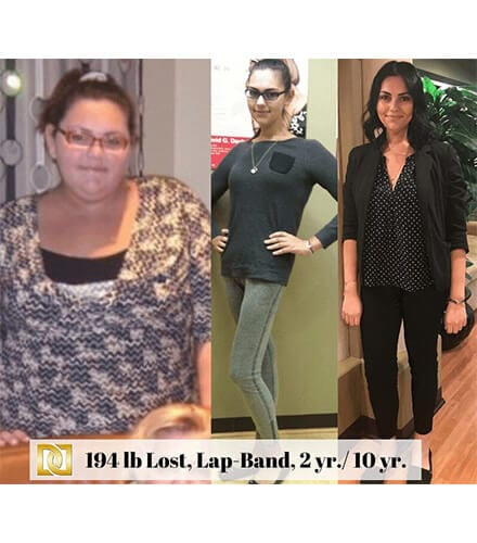 Weight Loss Surgery in Los Angeles Before and After