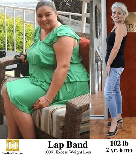 bariatric surgery before and after from Lap Band Surgery in Los Angeles