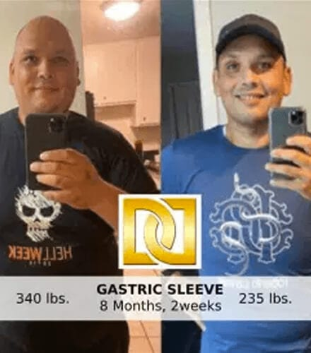 Gastric Sleeve surgery Los Angeles before and after photo