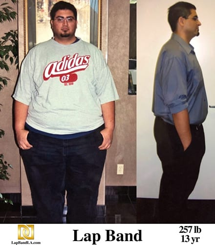 Bariatric Surgery with Lap Band Surgery  in Los Angeles