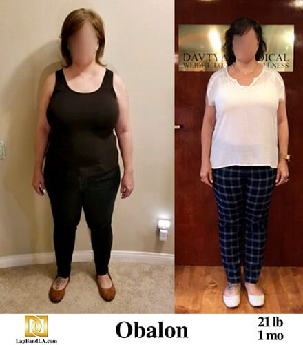 Weight Loss Surgery in Los Angeles