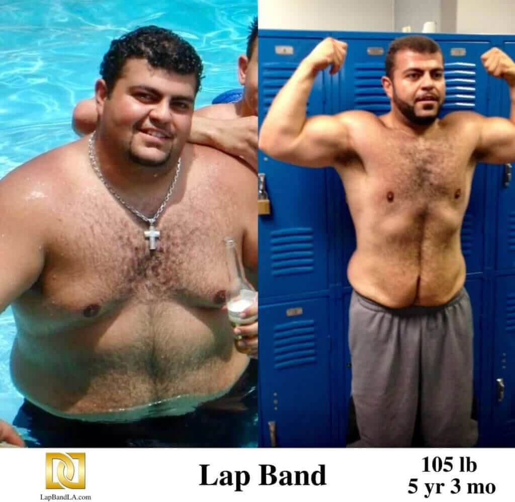 Bariatric surgery Los Angeles before and after with Lap Band photo